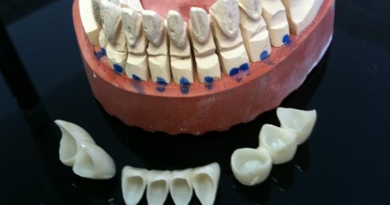 Brücke aus Zirkon und Porzellan mit dem CAD/CAM Verfahren von großer Prezisität.