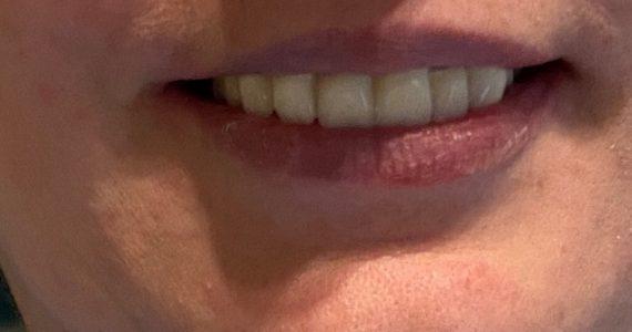 Kusza fogak rendbetétele porcelánhíddal