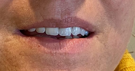 A Vertex fogsor fogai élethűek és törhetetlenek