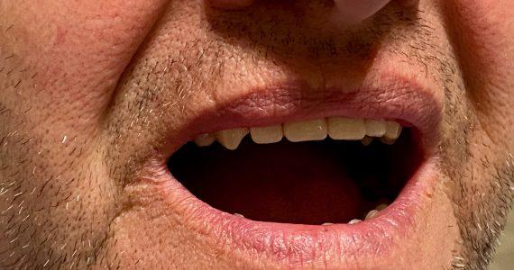 Kényelmes Vertex rugalmas fogsor