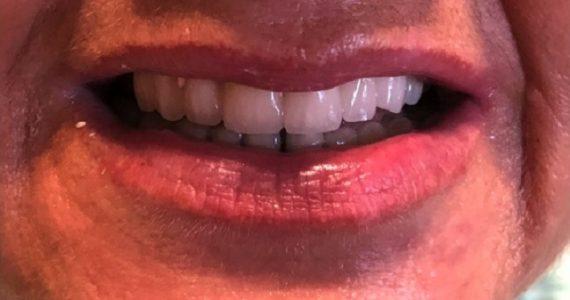 Leromlott fogak megmentése rögzített porcelán körhíddal
