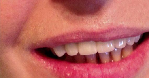Csúnya fogak helyett gyönyörű mosoly porcelán koronák segítségével