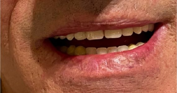 A részleges rugalmas Vertex fogsor rugalmas fémmentes kapcsai stabil rágást biztosítanak